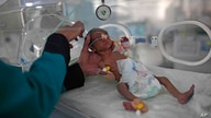FILE - In this June 27, 2020 file photo, a medic checks a malnourished newborn baby inside an incubator at Al-Sabeen hospital…