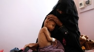 Mother of Radhi Awadh, 2, a malnourished boy, holds him at a malnutrition treatment ward of al-Sabeen hospital in Sanaa, Yemen…