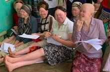 Women living with albinism attend a class at Women and Children with Albinism on the outskirts of Kampala, Uganda, to learn how to make organic soap as a means of  earning a living.