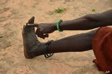 FILE - A woman points to her toe from where, she said, three worms emerged in 2009 when she was infected with Guinea worm in her town of Terekeka, South Sudan, Oct. 4, 2017.