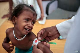 In this Oct. 1, 2018, photo, a doctor measures the arm of malnourished girl at the Aslam Health Center, Hajjah, Yemen.