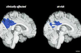 Alzheimer's Disease Researchers Switch Focus to Prevention Methods
