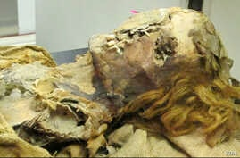 This mummy of an Egyptian woman who was between 45 and 50 years old when she died, is from an unknown era and shows evidence of heart disease. (The Lancet)