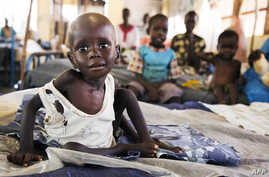 Aleo Tong (1), who suffers severe malnutrition, rests on a bed at the MSF Nutrition centre in Aweil Hospital, on August 2, 2016.