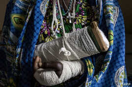 Alphonsime Mojetha (54) recovers in a hospital room on March 2, 2018 in Bunia, after an attack on her village where she lost her two children, and received severe lacerations to the back of her head, arms and hands from a machete attack.