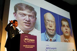 Dr. Eduardo D. Rodriguez, the Helen L. Kimmel Professor of Reconstructive Plastic Surgery at NYU Langone Medical Center, holds a news conference to announce the successful completion of the most extensive face transplant to date, in New York, Nov. 16