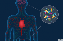 Artist's concept depicting microbes in the gut instigating changes in the brain that can lead to Parkinson's disease. People with Parkinson's harbor distinct gut bacteria that influence the disease's severity. (CalTech)