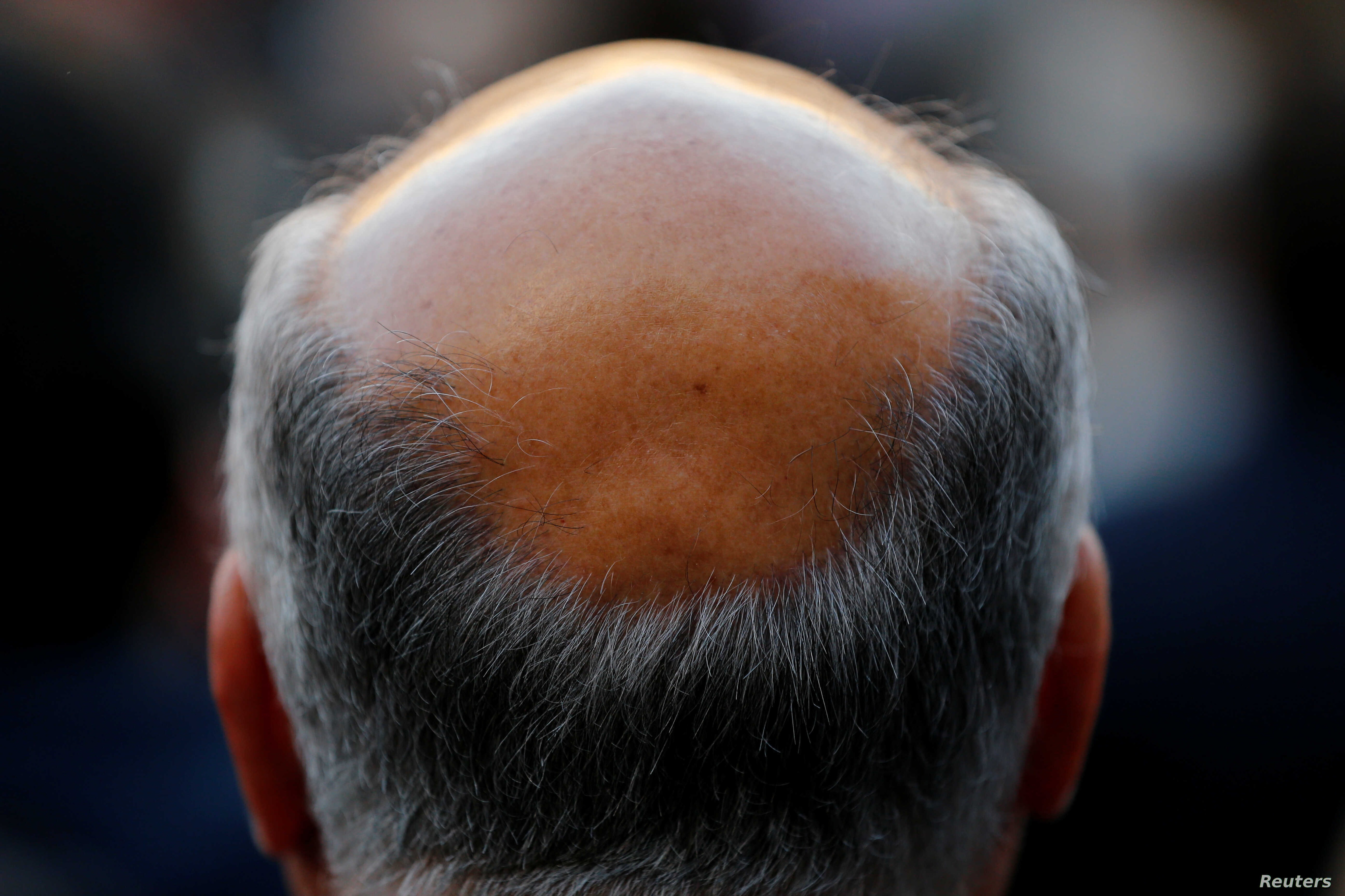 A new study has found that males of short stature are at increased risk of losing their hair prematurely, in addition to a number of other health conditions.