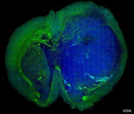 This image of a human glioblastoma brain tumor in the brain of a mouse was made with stimulated Raman scattering, or SRS, microscopy. The technique allows the tumor (blue) to be easily distinguished from normal tissue (green) based on faint signals e...