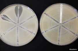 FILE - Two plates which were coated with an antibiotic-resistant bacteria called Klebsiella with a mutation called NDM 1 and then exposed to various antibiotics are seen at the Health Protection Agency in north London, March 9, 2011.