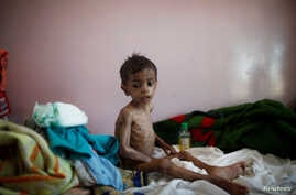 A malnourished boy sits on a bed at a malnutrition treatment center in Sanaa, Yemen, Oct. 30, 2016.