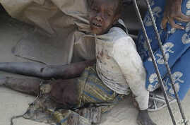 This handout image received courtesy of Doctors Without Border (MSF), Jan. 17, 2017, shows a wounded child after an air force jet accidentally bombarded a camp for those displaced by Boko Haram Islamists, in Rann, northeast Nigeria.
