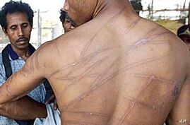 Indonesian Police Accused of Systematic Torture of Prisoners