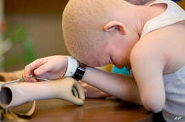 FILE- Mwigulu Matonange Magesa pauses for a moment after an occupational therapy session, Aug. 25, 2015, at Shriners Hospital for Children in Philadelphia. Mwigulu and four other children from Tanzania with the hereditary condition of albinism were i