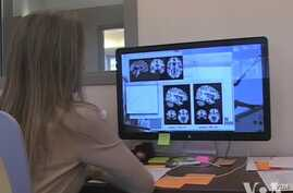 Brain Scan Database Aims to Accelerate Chronic Pain Research
