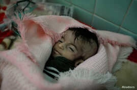 Hajar al-Faqeh, 4 months, who died at the malnutrition ward of al-Sabeen hospital, is seen at the hospital in Sanaa, Yemen, Nov. 15, 2018.
