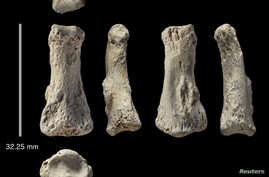 The single fossil finger bone of Homo sapiens - pictured from various angles - from the Al Wusta site, Saudi Arabia is pictured in this undated handout composite photo obtained by Reuters April 9, 2018.