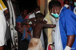 A badly burned child arrives at the Provincial Hospital in Tete, Mozambique, Nov. 17, 2016, after a truck carrying petrol burst into flames.
