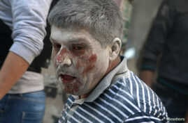 n injured man reacts at a site hit by airstrikes in the rebel-held area of Aleppo's Bustan al-Qasr, Syria, April 29, 2016.