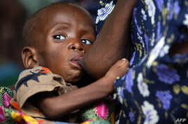 A Malawian child, suffering from HIV, breast-feeds at the Zomba NRU (Nutritional and Rehabilitation Unit), 60 kms south of Blantyre, October 14, 2005 file photo.