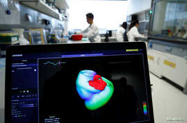 FILE - A monitor shows a three-dimensional image of a human heart at the Klaus-Tschira-Institute for Integrative Computational Cardiology, department of the Heidelberg University Hospital, in Heidelberg, Germany, Aug. 14, 2018.