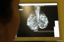 A doctor exams mammograms, a special type of X-ray of the breasts, which is used to detect tumours as part of a regular cancer prevention medical check-up at a clinic in Nice, south eastern France January 4, 2008.       REUTERS/Eric Gaillard    (FRAN