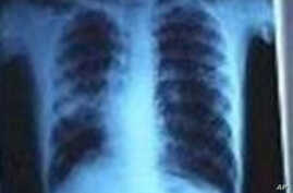 World Health Organization Marks World TB Day