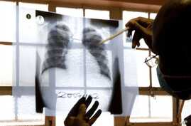 In this2007 file photo, a doctor examines chest X-rays at a tuberculosis clinic in Gugulethu, Cape Town, South Africa. The spread of a virtually untreatable form of tuberculosis in South Africa is being fueled by the release of infected patients int