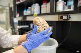 A researcher holds a human brain in a laboratory, (File photo).