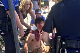 A person is treated by first responders after a deadly stabbing attack on University of Texas campus in Austin, Texas, May 1, 2017.