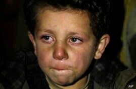 A young boy waits to be evacuated from the besieged town of Madaya, northwest of Damascus, Syria, on Jan. 11, 2016.