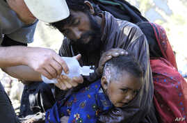 An American nurse from the Save the Children non-governmental organization treats a Pakistani baby injured in the earthquake in Pashto area in the mountains in the north of the country, 21 October 2005.  Assistance and food supply arrived with the ar