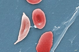 A colorized microcsope image made available by the Sickle Cell Foundation of Georgia via CDC.