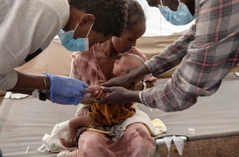 A Tigray woman who fled the conflict in Ethiopia's Tigray region, holds her malnourished and severely dehydrated baby as nurses…