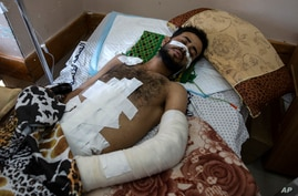 Ghassan Al-masri, 22, rests at the Shifa hospital in Gaza City, Thursday, May 13, 2021, where he is receiving treatment for…