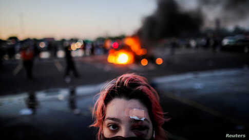 Rachel Perez is pictured with bruising around her eye and a plaster on her forehead, injuries sustained from rubber bullets.