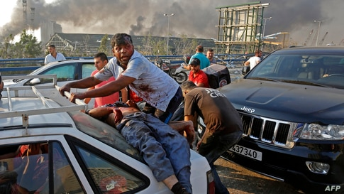 EDITORS NOTE: Graphic content / An injured man lies at the back of a car before being rushed away from the scene of a massive…