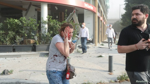 An injured woman is seen following an explosion in Beirut, Lebanon, Aug. 4, 2020.