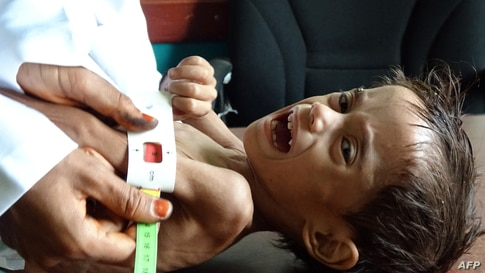 Ahmed Abdo Salem, a two-year-old Yemeni child displaced by conflict suffering from malnutrition is measured at a health clinic in the war-ravaged western Hodeida province.