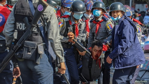 Police carry their injured fellow member as people protest against the military coup, in Mandalay, Myanmar, Feb. 9, 2021.