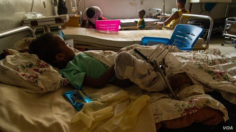 Samwarit, 4, recovers in a Mekelle, Ethiopia, hospital on June 4, 2021. She was knifed in the leg and shot in the hand, according to her father. (VOA/Yan Boechat)