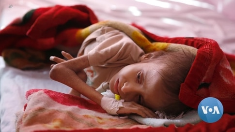 Oscar-Nominated Documentary 'Hunger Ward' Chronicles Child Famine in Yemen