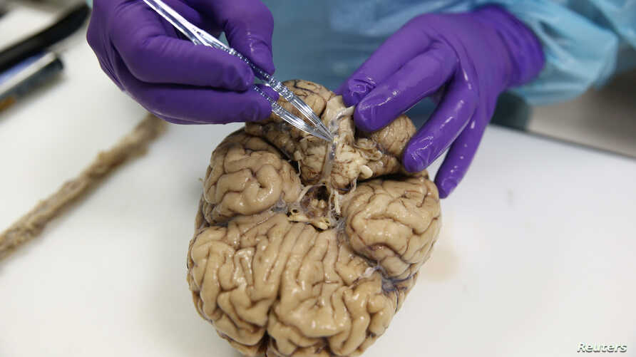 FILE - A researcher examines a human brain at the Multiple Sclerosis and Parkinson's UK Tissue Bank, at Imperial College London, Britain June 3, 2016.