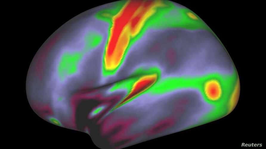 A map of myelin content (red, yellow are high myelin; indigo and blue are low myelin) in the left hemisphere of cerebral cortex is pictured in this undated handout image.