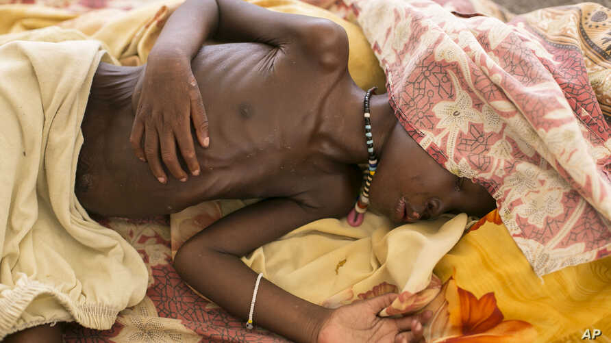 FILE - A severely malnourished child lies on а bed at MSF