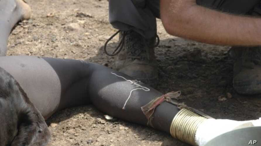 A guinea worm emerges from the leg of a south Sudanese girl in Juba. (File Photo)