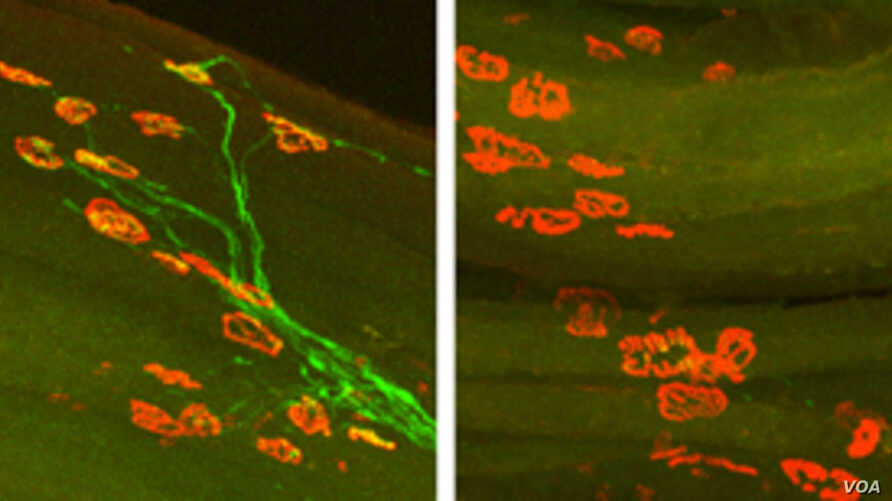 Images of axon regeneration in mice two weeks after injury to the hind leg's sciatic nerve. On the left, axons (green) of a normal mouse have regrown to their targets (red) in the muscle. On the right, a mouse lacking DLK shows no axons have regenera