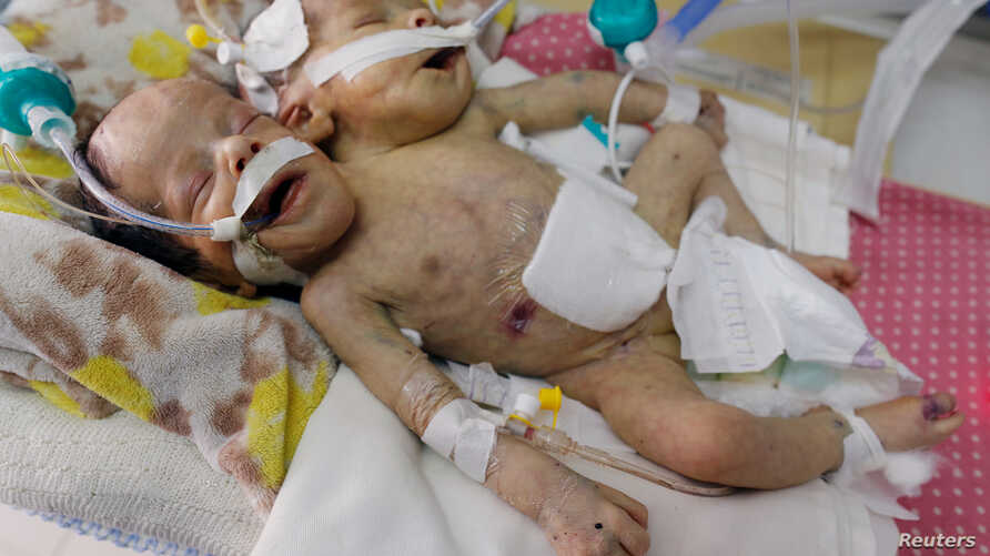 Newly born conjoined twins lie in an incubator at the child intensive care unit of al-Thawra hospital in Sanaa, Yemen, Feb. 6, 2019.
