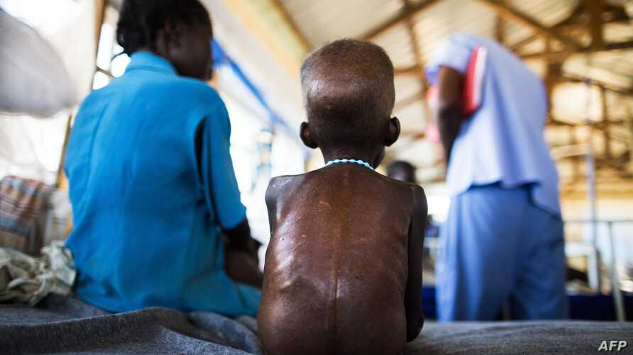 A five-year-old boy with a severe malnutrition rests on a bed on Oct. 9, 2015 at the Aweil State Hospital, in Northern Bahr El-Gazhal, South Sudan.