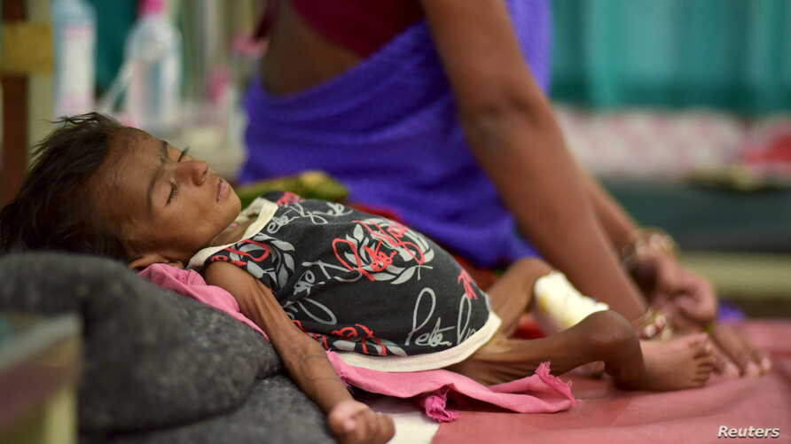 An infant lies in bed in a malnutrition intensive care unit in Dharbhanga, India, April 16, 2015. Researchers thought stunting was mostly caused by malnutrition, but a study indicates a parasite may be a factor.